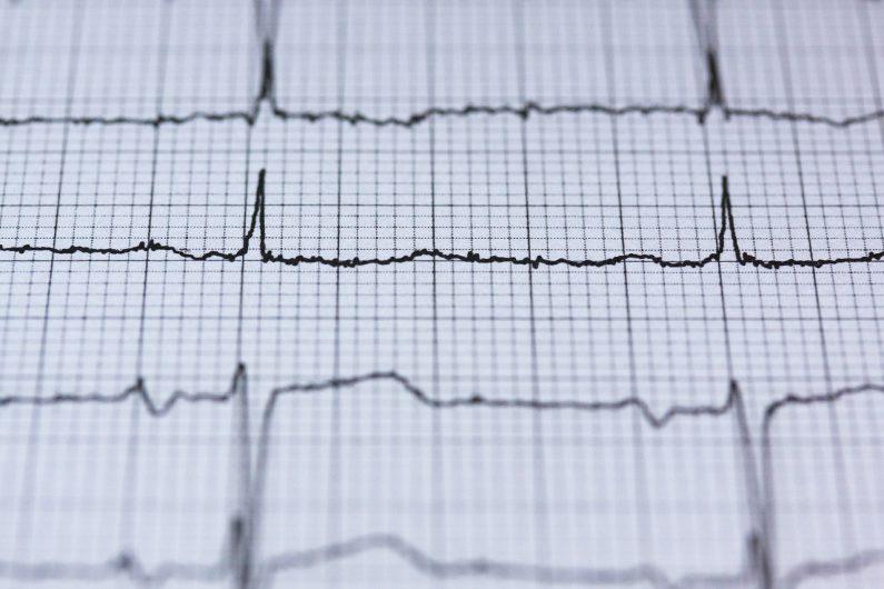 Jak zminimalizować ryzyko zawału serca